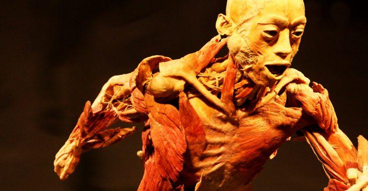 real bodies sportpaleis antwerpen expo lichaam korperwelten rariteitenkabinet wunderkammer geslachtsziekten tento lichaam (2)